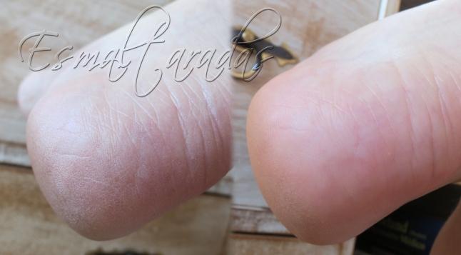 Dry heel eliminator2